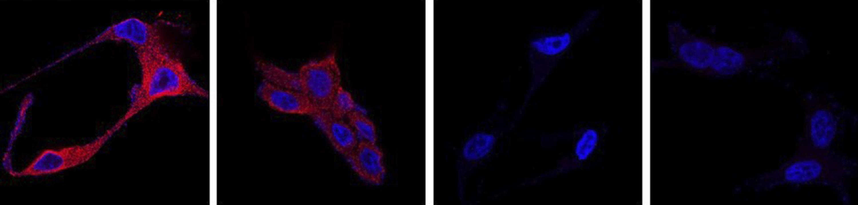 imagen de Actuación selectiva de la nanomedicina de docetaxel, el fármaco más usado para el tratamiento del cáncer de próstata resistente a la hormonoterapia./ ITQ, CSIC-UPV
