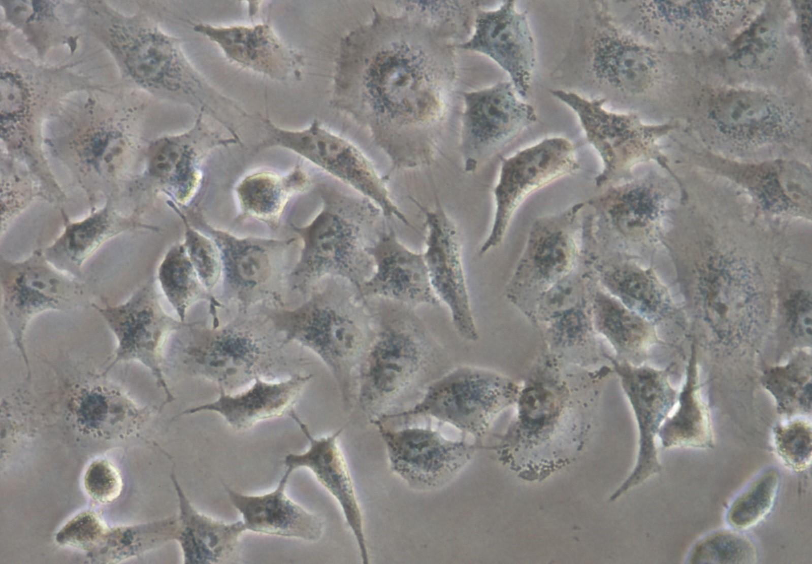imagen de Células de adenocarcinoma de pulmón humano utilizadas en el estudio. / Daniel Carbajo