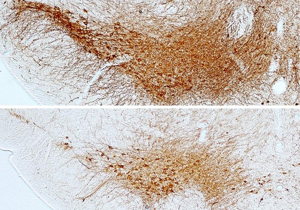 imagen de Imagen de las neuronas dopaminérgicas de la sustancia negra del cerebro. / Mario Vallejo y Iara Pérez-Taboada