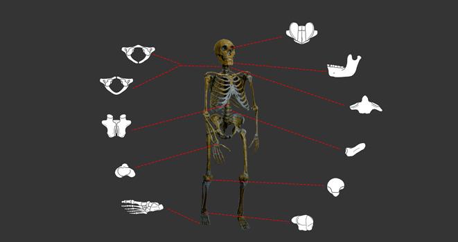 imagen de Esqueleto neandertal con las 17 anomalías encontradas en el estudio /  Grupo de Paleoantropología MNCN-CSIC
