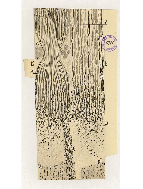 Semi-ligadura del nervio ciático en un conejo sacrificado ocho días después de la operación.