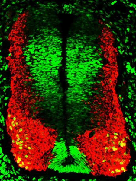 imagen de Imagen: En verde, precursores neurales expresando el factor de transcripción Sox5.