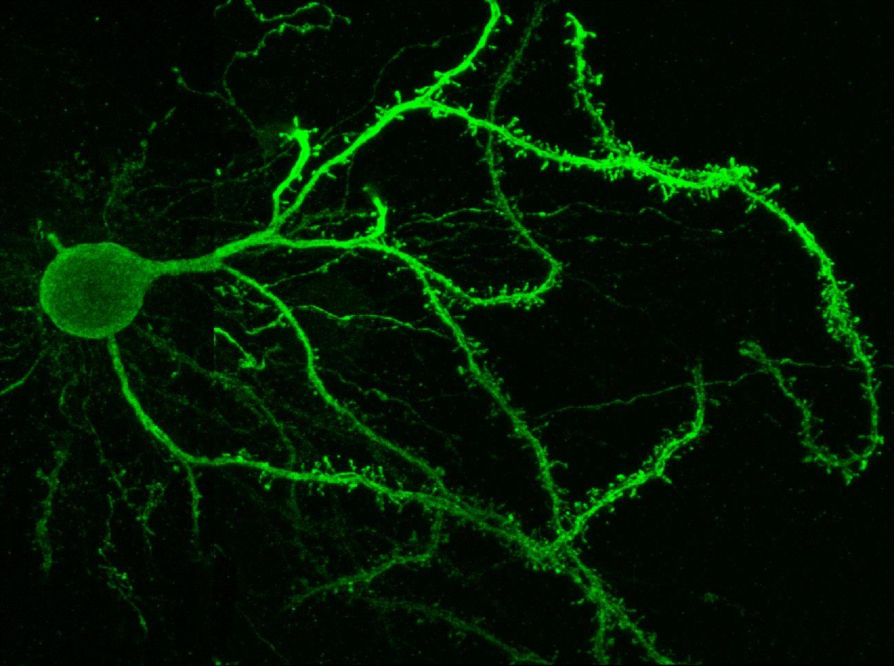 imagen de Imagen de una neurona estriatal de la vía directa. / CSIC