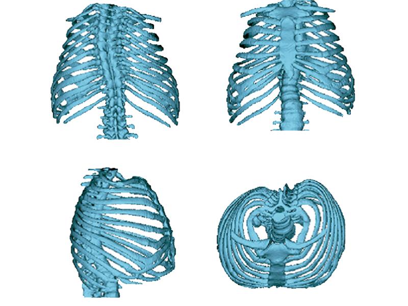 imagen de Imagen de análisis estadístico en 3D de la deformidad torácica causada por la osteogénesis imperfecta que dificulta la capacidad de los pacientes para respirar. / Laboratorio de Morfología Virtual del MNCN