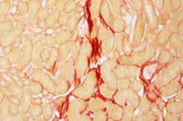 Sección del riñón de un ratón dañado por fibrosis. / CBM-CSIC-UAM