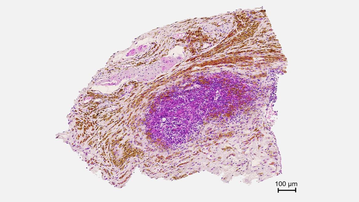 cancer_pancreas
