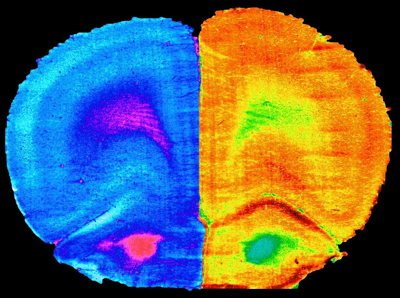 imagen de Corteza prefrontal de un ratón con la actividad cerebral reducida (izquierda) por una dieta alta en grasas frente a la recuperación con ejercicio o la administración de 'A. muciniphila' (derecha). / IPLA-CSIC-UV