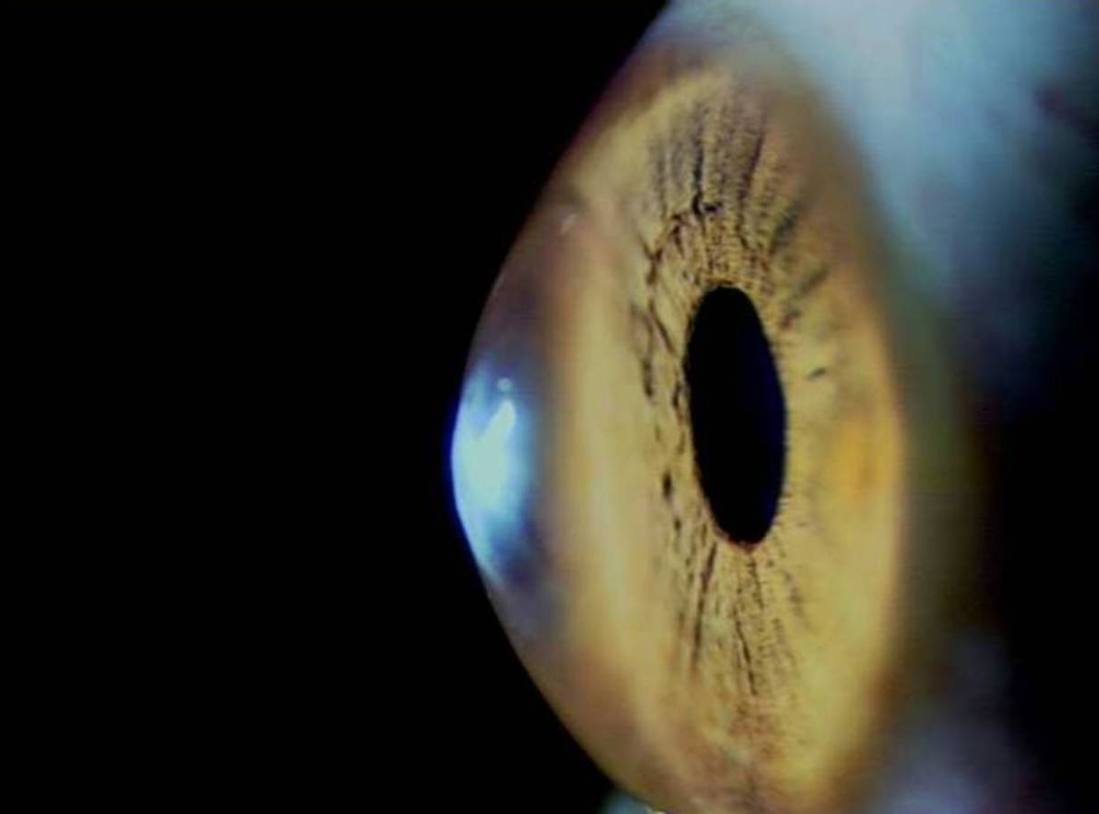 La córnea, la lente más externa del ojo, se debilita con el paso del tiempo./ VioBio Lab-CSIC