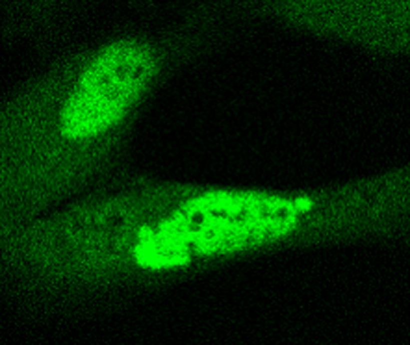 fibroblastos.jpg