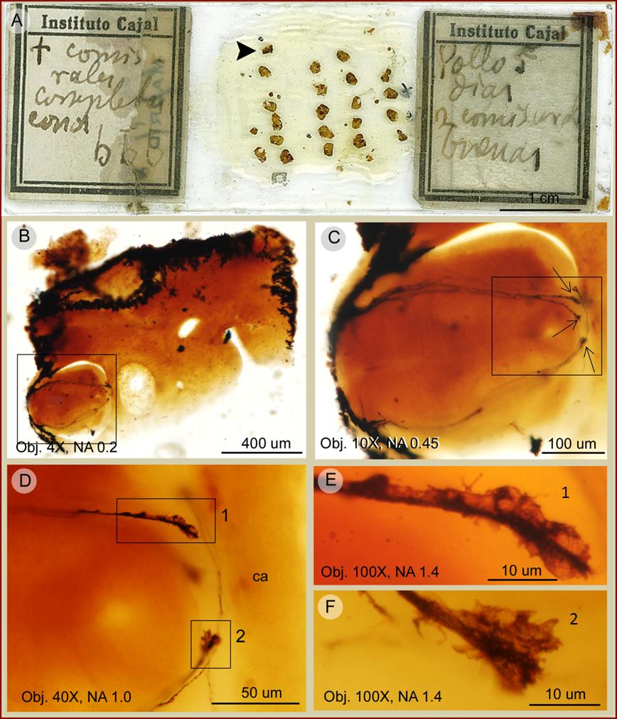 Conos de crecimiento observados en una preparación histológica de Cajal de la médula espinal de un embrión de pollo de 5 días