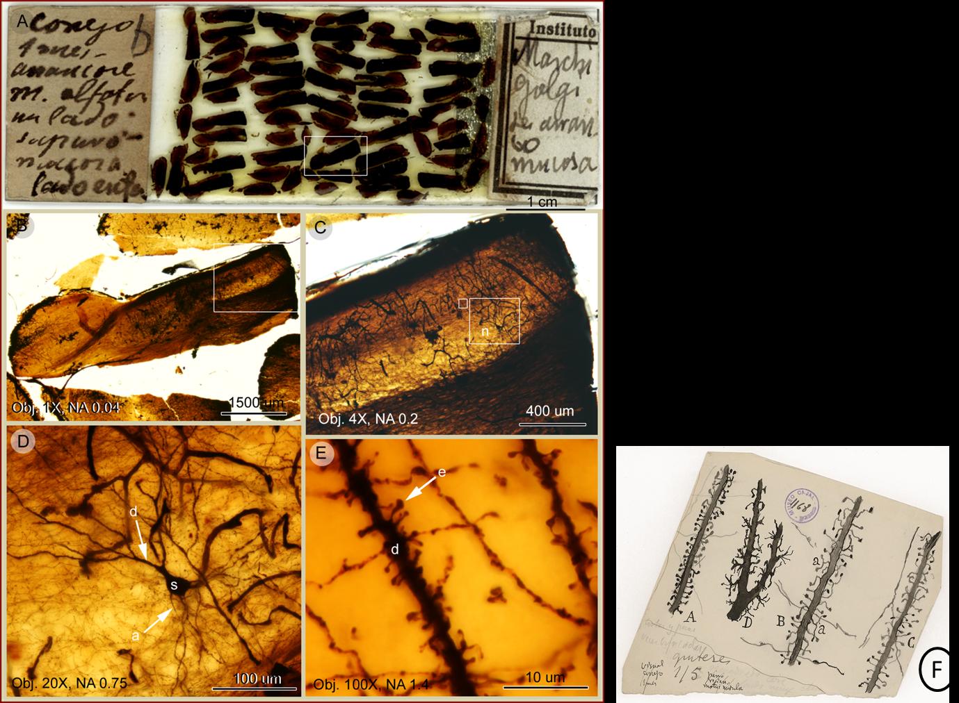 Espinas dendríticas detectadas en una preparación histológica de Cajal del bulbo olfativo de conejo