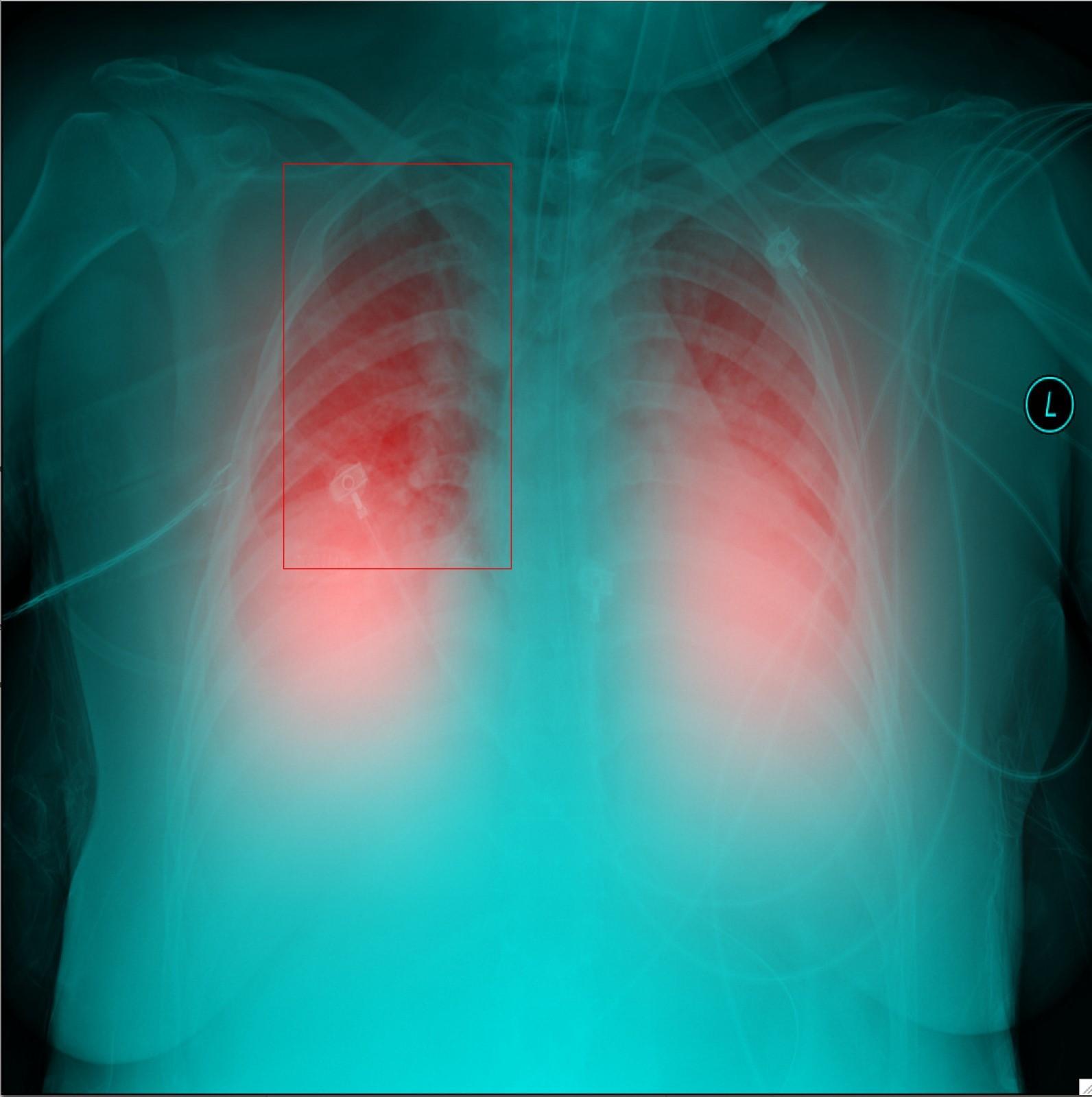 imagen de Radiografía de tórax tratada con inteligencia artificial. / IFIC-CSIC-UV