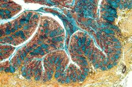 Imagen de un corte del intestino de un ratón afectado con enfermedad inflamatoria intestinal / CSIC